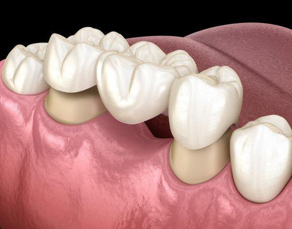 Dental bridge being fitted onto teeth