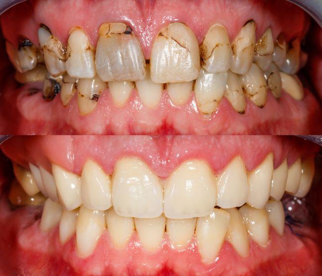 Full Mouth Rehabilitation. Implants. Composite Bonding. Esthetic Dentistry