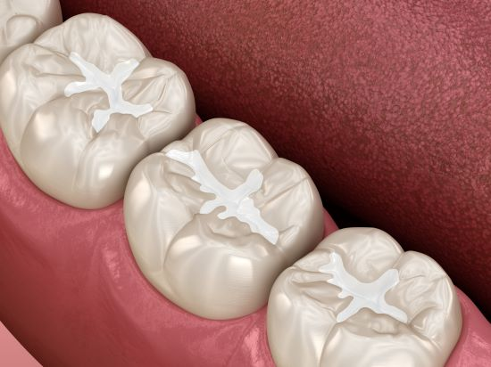 Dental Sealants on Molars