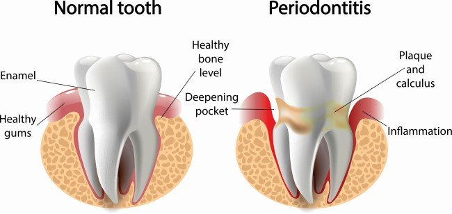 Effects of Periodontal Disease